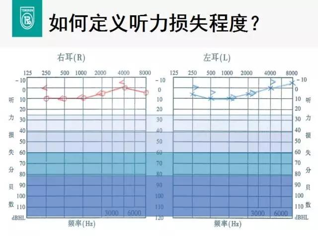 """安庆的朋友们,您的工作是""""听力高危职业吗""""?"""